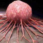 تطوير العلاج الكيميائي لقتل الخلايا السرطانية المقاومة للعلاج