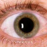تأثير مرض السكري على صحة العيون