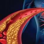 تأثير هرمون التستوستيرون على معدلات الكوليسترول