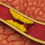 تأثيرات هرمون البروجسترون على معدلات الكوليسترول