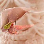 علاج انسداد القنوات المرارية بالأعشاب