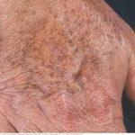 أنواع بقع الكبد على الجلد وطرق العلاج
