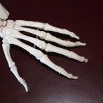 علاج تكلس العظام بالأعشاب