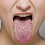 تلف الكبد و الإصابة بجفاف الفم