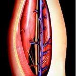 أفضل علاجات طبيعية لجلطات الدم في الساق