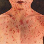 أسباب انتشار عدوى بكتيريا البريميات في أفريقيا