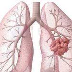 اكتشاف نوع جديد من أنواع سرطان الرئة