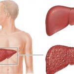 علاج غيبوبة الكبد بالاعشاب