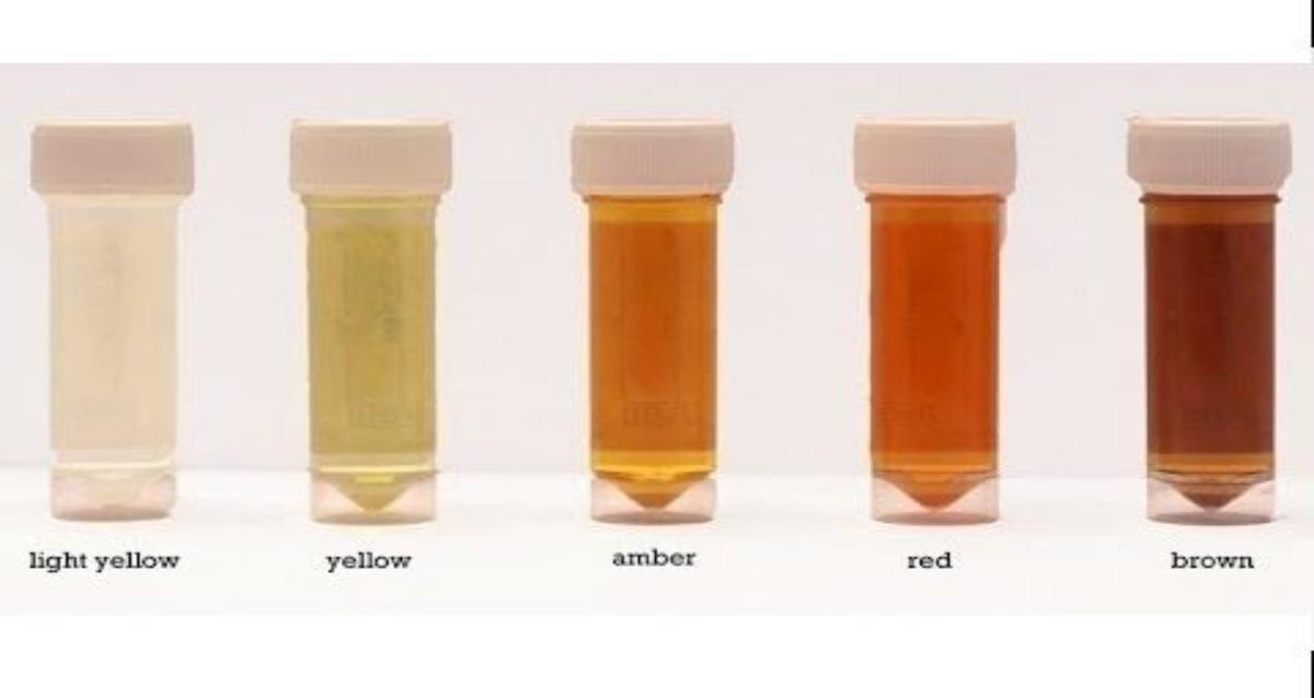 معنى لون البول الأحمر على الصحة المرسال