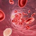 علاج نقص صفائح الدم عند الحامل وكيفية الوقاية منه