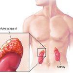 قصور الغدة الكظرية وعلاقتها بأمراض الغدة الدرقية المناعية