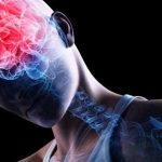 اضرار ارتجاج المخ البعيدة المدى