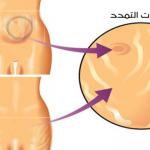 أطعمة تساعد على منع علامات التمدد اثناء الحمل