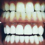 مدى تأثير القهوة على شكل وجمال الأسنان