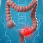 الدم الخفي في البراز قد يشير لأكثر من سرطان القولون