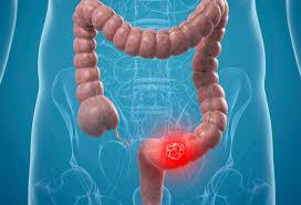 الدم الخفي في البراز قد يشير لأكثر من سرطان القولون المرسال