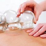 فوائد الحجامة في علاج الأمراض الجلدية