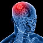الفرق بين السكتة الدماغية والنوبة الاقفارية العابرة