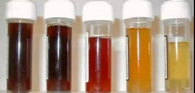 الفيتامينات التي تسبب تغيرات في لون البول المرسال