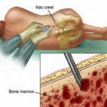 ملف شامل عن زراعة النخاع العظمي