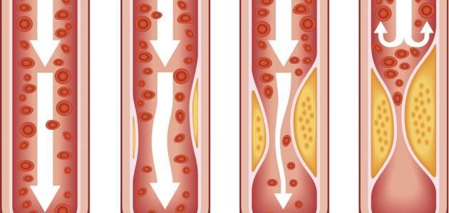 أنواع تصلب الشرايين وأكثر الأشخاص عرضة للإصابة به المرسال