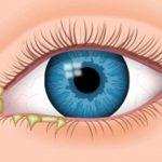 اسباب لزوجة و تمخط العين و كيفية العلاج