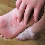 أسباب وعلاج حكة القدمين