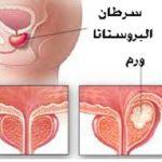 عنصر الليكوبين و الوقاية من سرطان البروستاتا