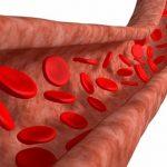 علاقة ارتفاع ضغط الدم بتمدد الأوعية الدموية