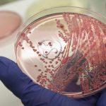 التهاب المهبل الجرثومي و أهم المضاعفات الناتجة عنه