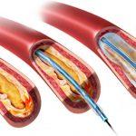 أسباب الإصابة بتصلب الشرايين الطرفية وطرق الوقاية والعلاج
