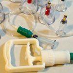 فوائد الحجامة في علاج ارتفاع ضغط الدم