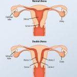 اعراض واسباب الرحم المزدوج وتأثيره على الحمل