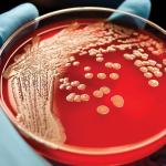 العلاقة بين الإصابة باللوكيميا و فقر الدم