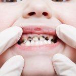المضاعفات المتوقعة من اهمال تسوس الاسنان