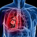 نصائح للوقاية من سرطان الرئة