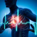 البقع الجلدية على الأرداف دليل الإصابة بالنوبة القلبية