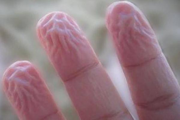 أسباب تجاعيد أصابع اليدين المرسال