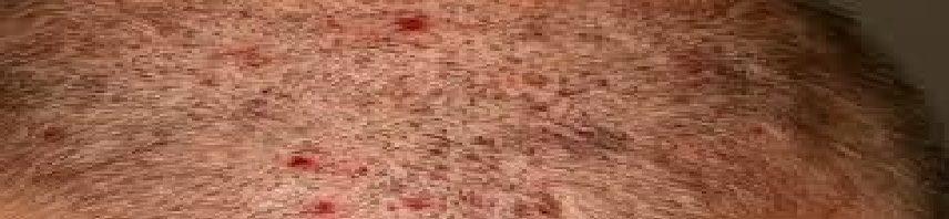 حبوب-فروة-الرأس-856x