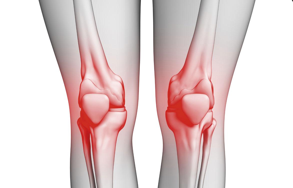 16d5f3995dd37 علاج خشونة الركبة بالخلايا الجذعية