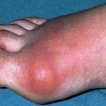 العلاقة بين مرض النقرس والفركتوز