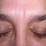 رواسب الكوليسترول حول العين وطرق التخلص منها