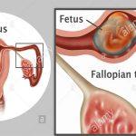 علامات تدل على الحمل خارج الرحم