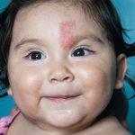 أسباب الوحمات الجلدية و أهم أنواعها