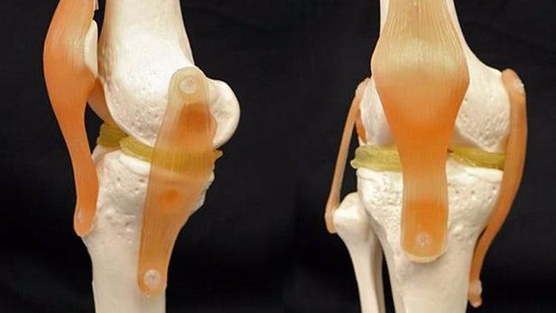 6e0b9aaffd868 علاج الغضروف الهلالي في الركبة