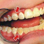 الفرق بين البلاك والجير على الاسنان