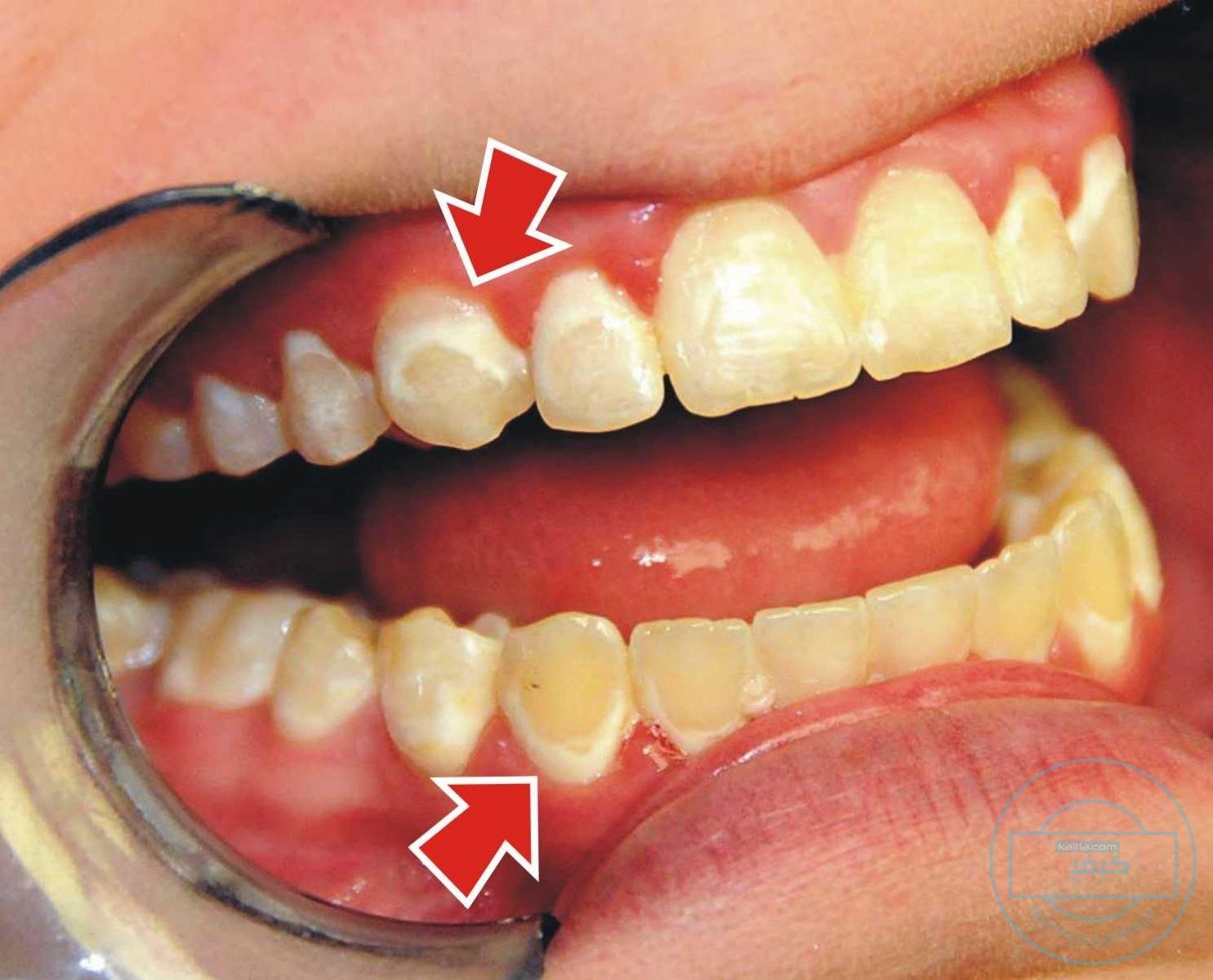 إنطباع كفريق واحد مع نادر كيفية ازالة طبقة الجير من الاسنان Dsvdedommel Com