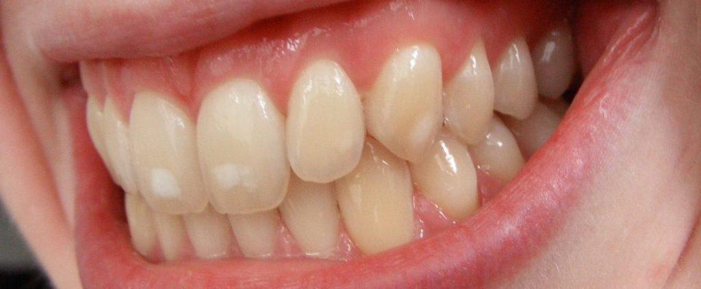 مراحل تسوس الاسنان بالصور المرسال