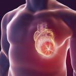 النقرس يزيد من احتمالية الإصابة بأمراض القلب