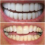 مخاطر وأضرار برد الأسنان